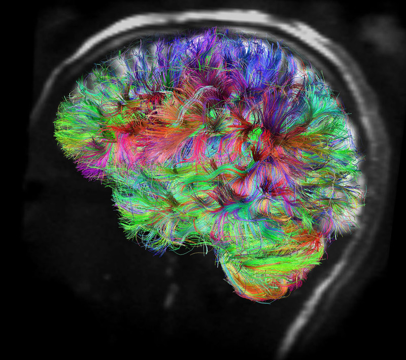 an introduction to an analysis of a human brain